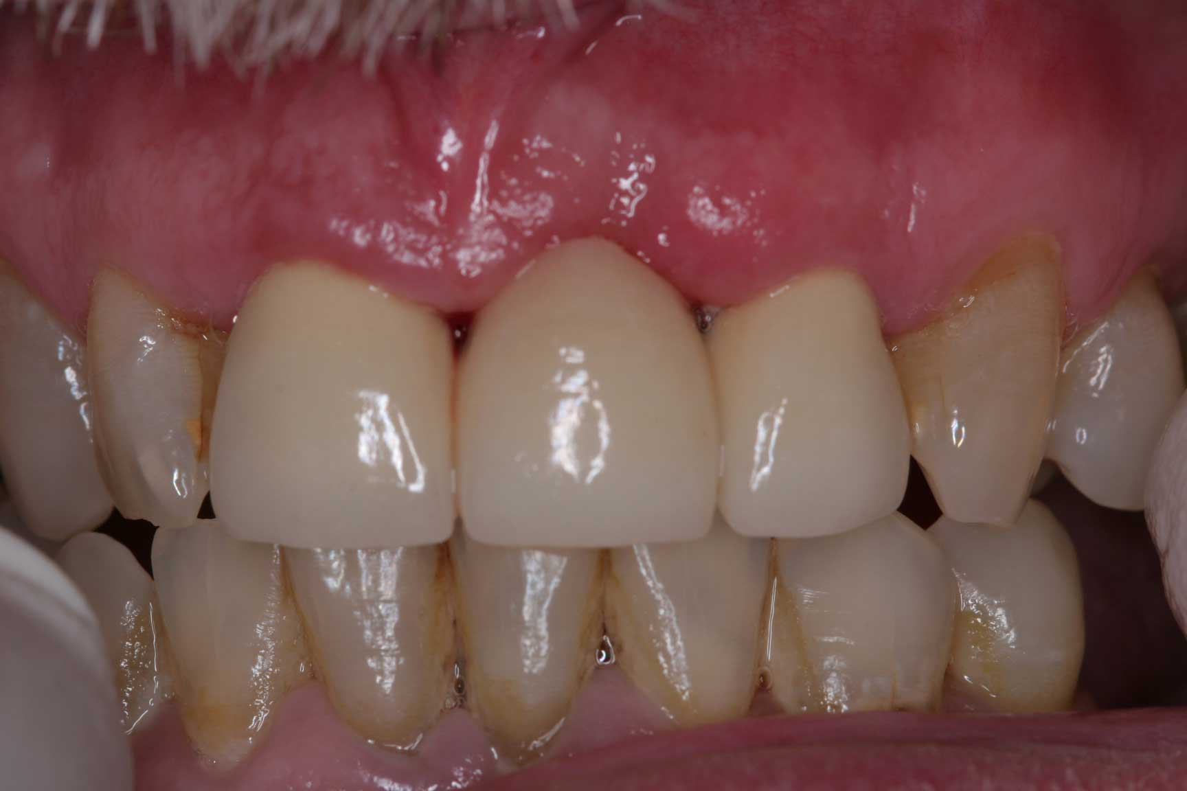 Millennium Dental Workers Compensation Dentist San
